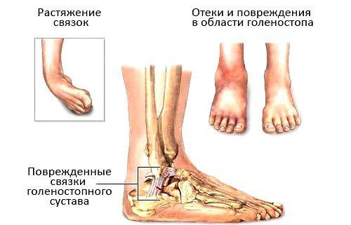 Проявления растяжения и разрыва голеностопа