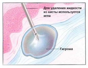 Пункция гигромы