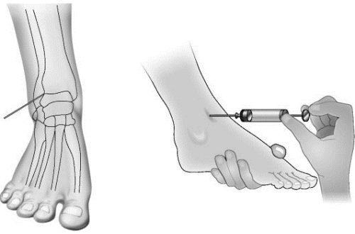 Пункция голеностопного сустава