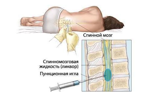 Пункция ликвора кисты позвоночника