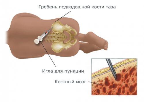 Пункция кости