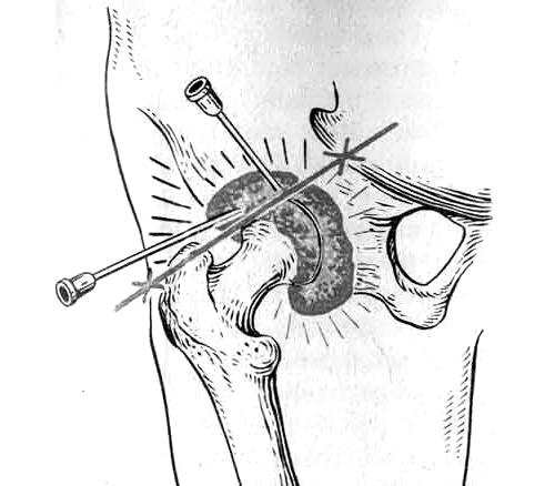 Пункция тазобедренного сустава