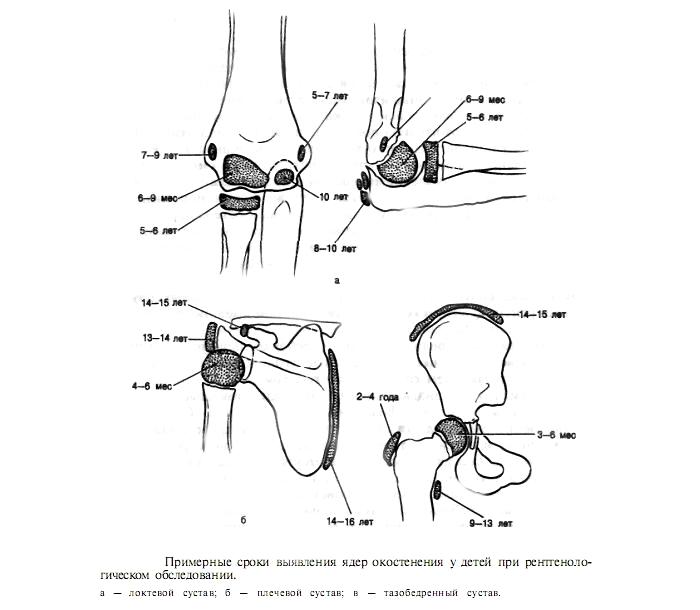 Распространение эпифизеолиза