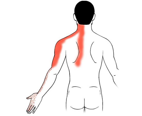 Распространение боли при шейном остеохондрозе и грыже