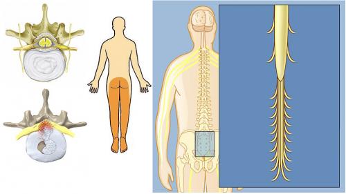Распространение боли при синдроме конского хвоста