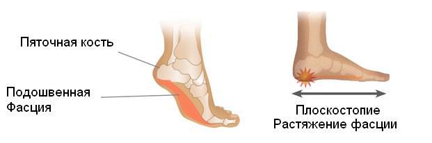 Растяжение фасции при плоскостопии