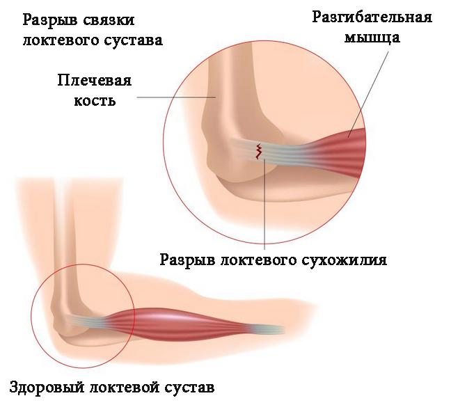Растяжение и разрыв связок локтевого сустава