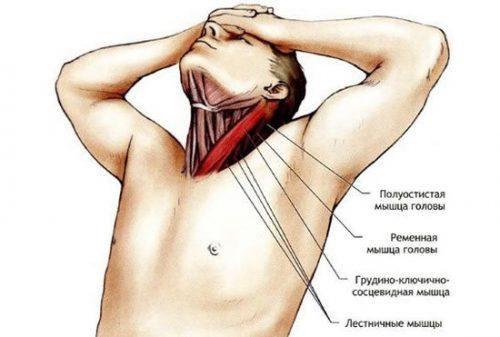 Растяжение мышцы шеи
