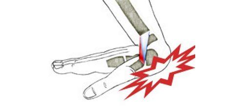 Растяжение связок кисти рук