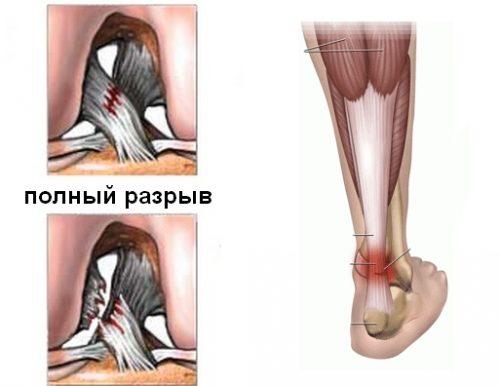Растяжение связок колена и голеностопа и колена