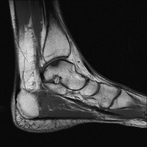 Растяжение связок голеностопа на МРТ