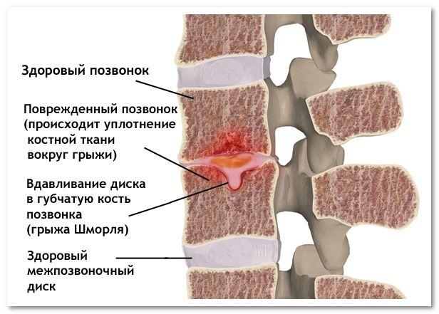 Вдавливание диска в губчатую кость позвонка (грыжа Шморля)