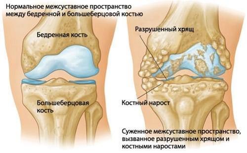 Разрастание хрящевой ткани