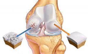 Разрушение костной ткани при остеоартрите