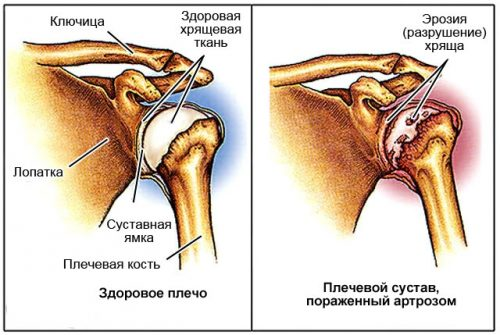 Разрушение плечевого сустава при артрозе