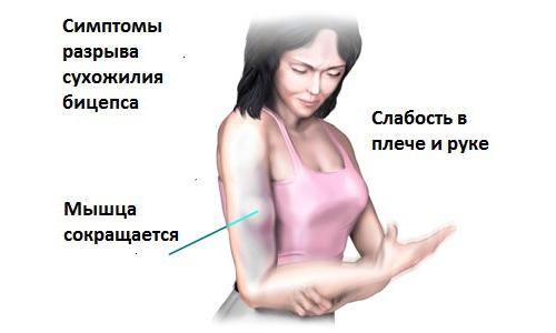 Разрыв сухожилий бицепса