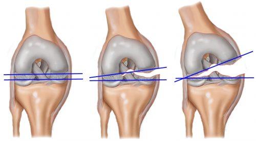 Разрыв капсулы коленного сустава