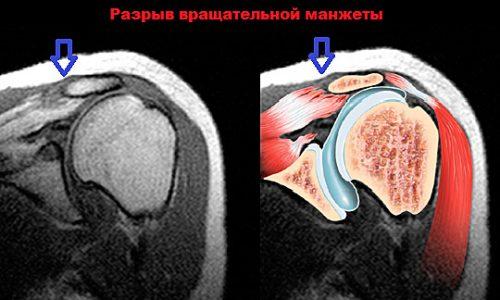Разрыв манжеты плеча на МРТ