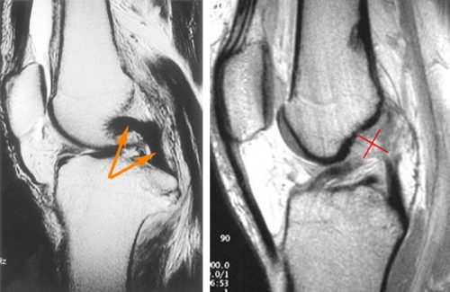 Разрыв связки колена на МРТ