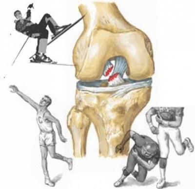Разрыв связки колена при травме