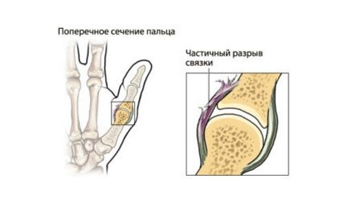 Частичный разрыв связки пальца