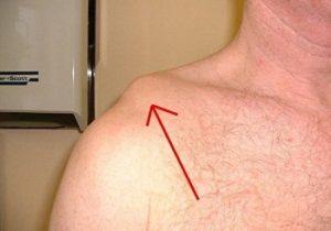 Разрыв связки плеча на фото