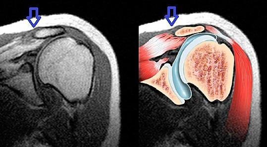 Разрыв связки вращательной манжеты плеча на МРТ