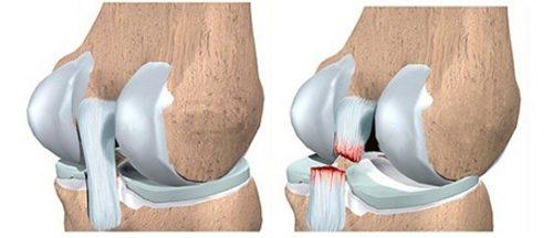 Разрыва связок колена