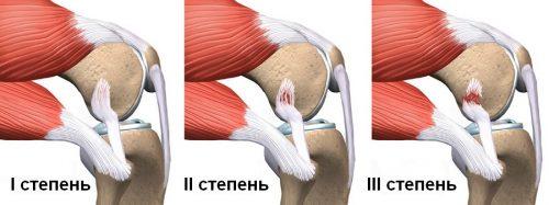 Опасность разрыва связок коленного сустава