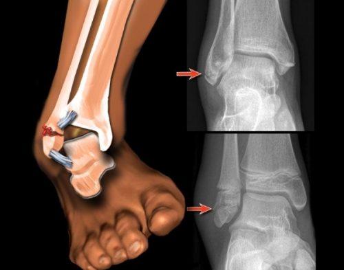 Разрывание связок на ноге