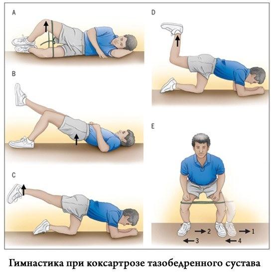 Реабилитация тазобедренного сустава