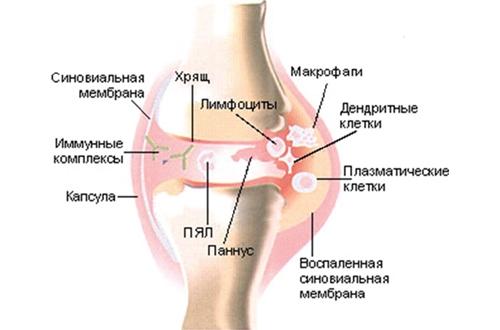 Механизм появления реактивного артрита