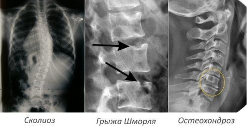 Рентген диагностика позвоночника