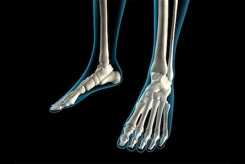 Рентген диагностика костей ног