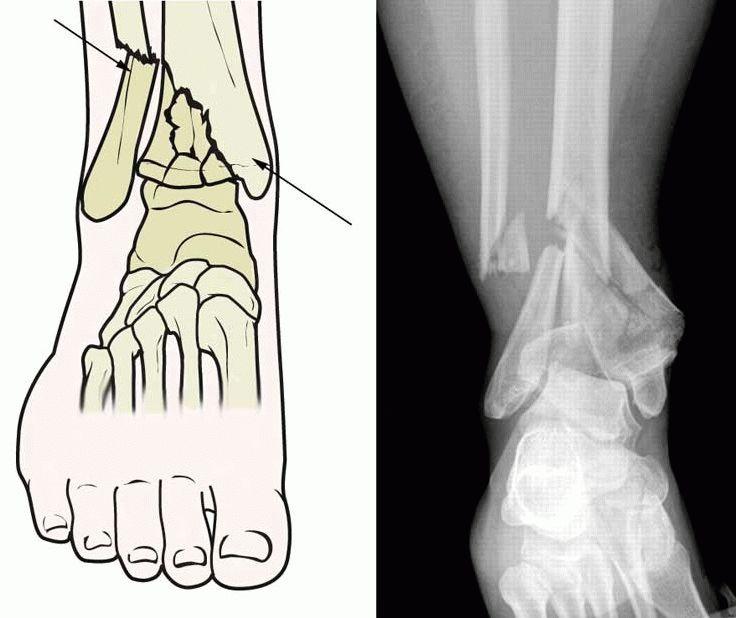 Рентгендиагностика перелома голени
