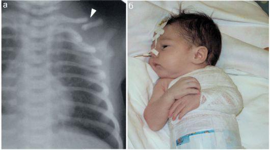 Рентген диагностика перелома ключицы у новорожденного