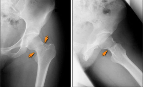 Рентген диагностика перелома шейки бедра