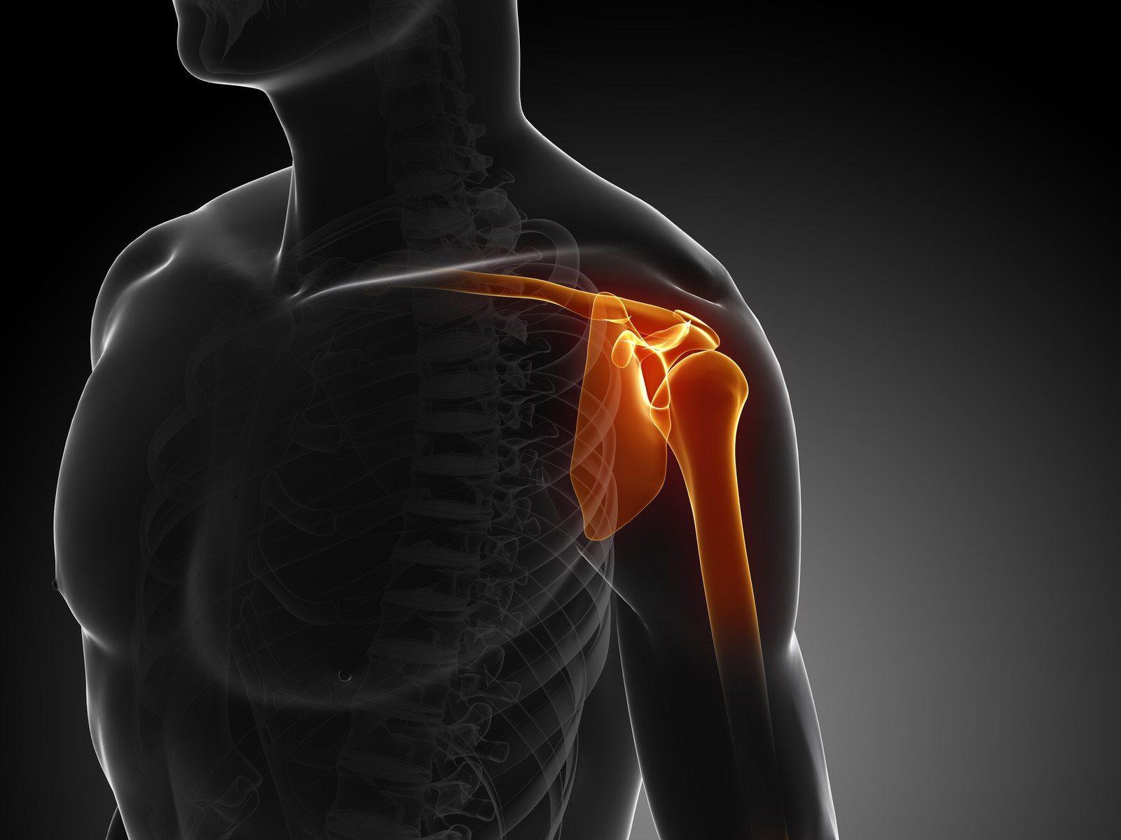 Рентген диагностика плечевого сустава