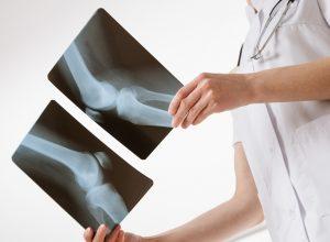 Рентген диагностика коленных суставов