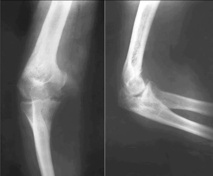 Остеоартроз на рентгене локтевого сустава