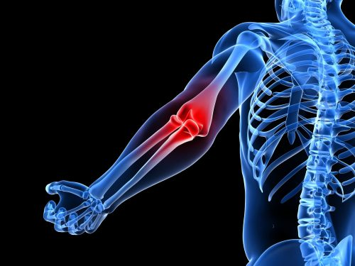 Рентген диагностика локтевого сустава