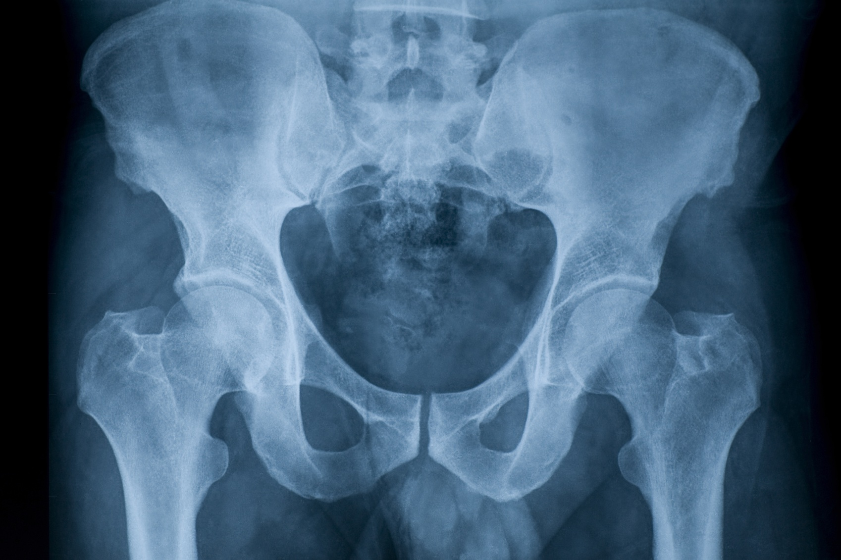 Тазобедренный сустав на рентген снимке в норме