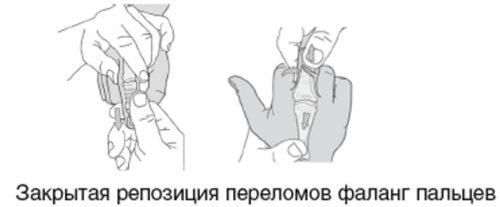 Закрытая репозиция пальца руки