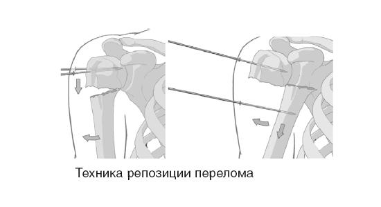 Репозиция при переломе плечевой кости