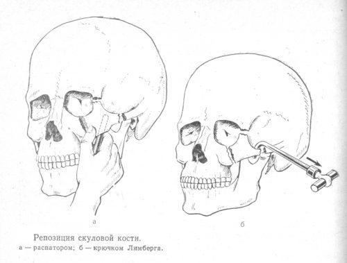 Варианты репозиции переломов скуловой кости