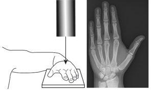 Рентген кисти на горизонтальной поверхности