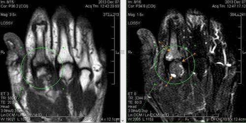 Ревматоидный артрит на МРТ