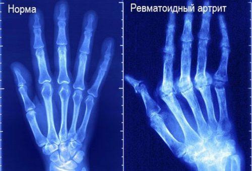 Ревматоидный артрит кисти на рентген снимке