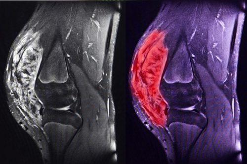 Саркома колена на МРТ снимке