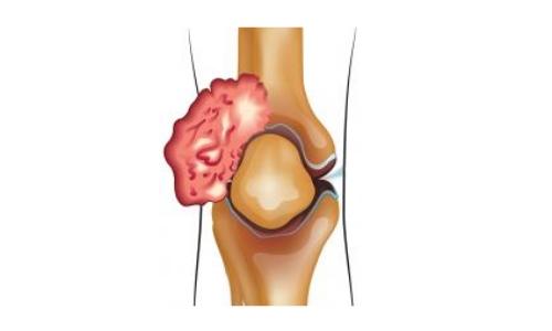 Схема саркомы коленного сустава